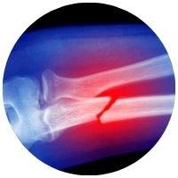 osteoporóza vlivem andropauzy
